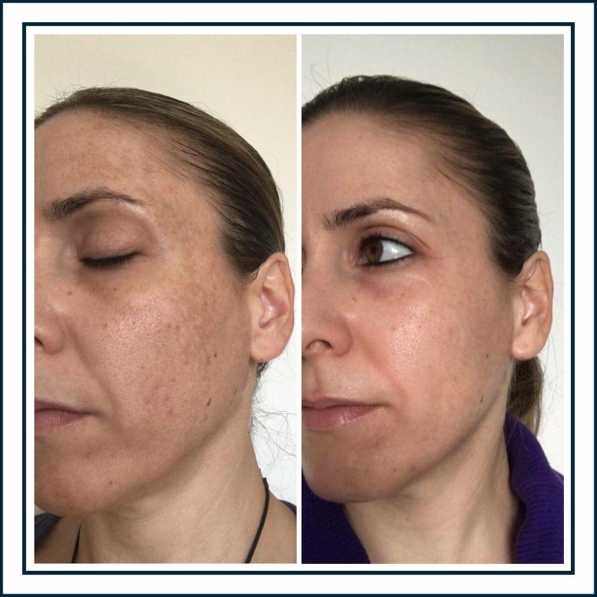 cosmelan-tratamiento-manchas-antes-y-despues-alicante-estetica-