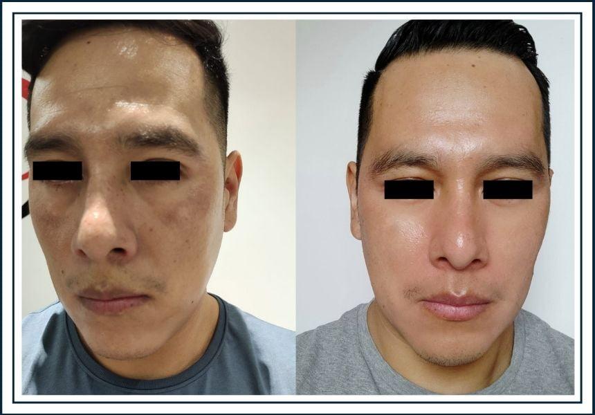 tratamiento de manchas cosmelan mesoestetic alicante